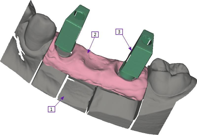 leading exocad dental design software for all restorations